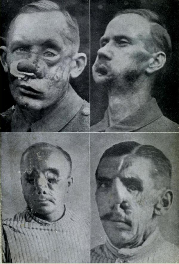 Plastic surgery in WWI