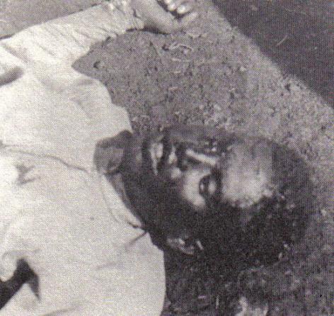 Effetti della civiltà italiana: giovane etiope ucciso dall'iprite (o gas mostarda).